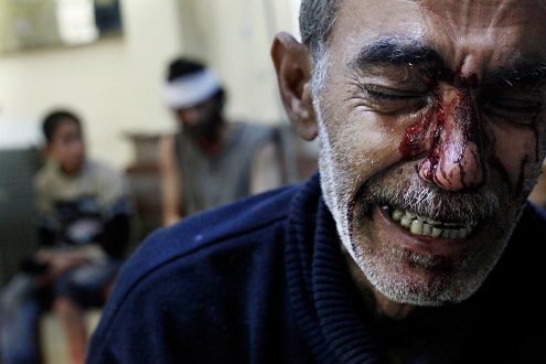 syria aleppo father hospital crying death of daughter